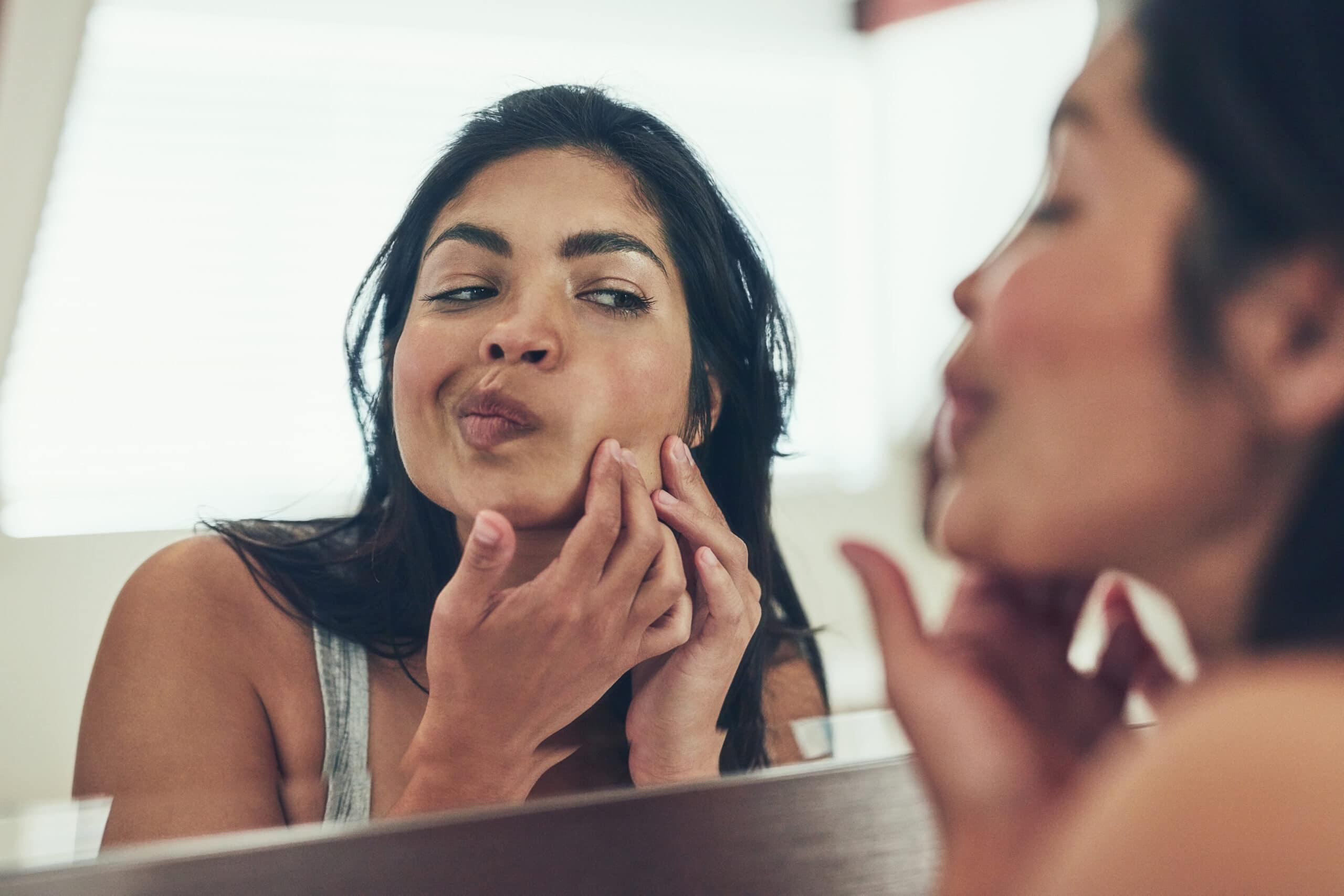 Acne And Eczema Treatments